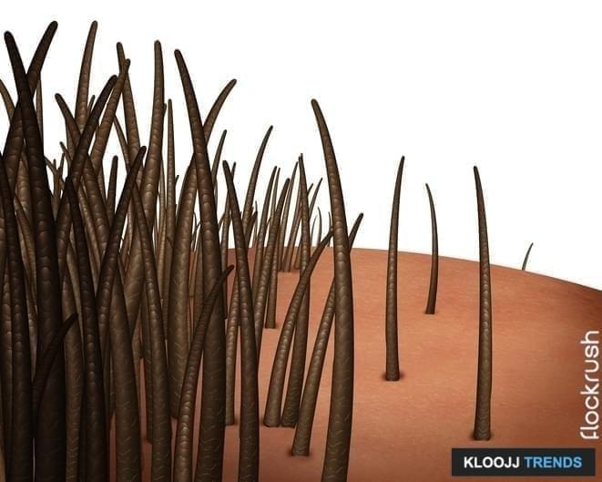 surgical hair restoration