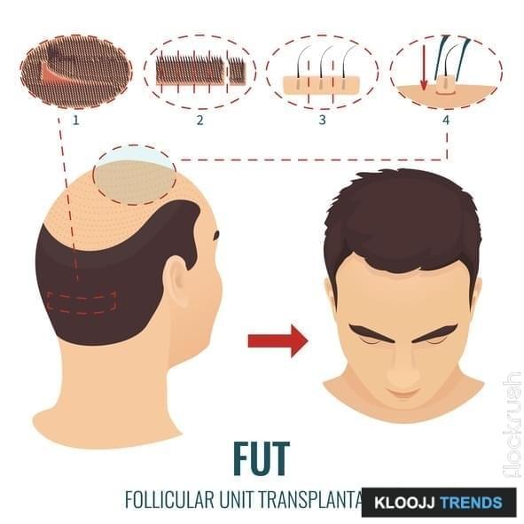 hair loss restoration cost