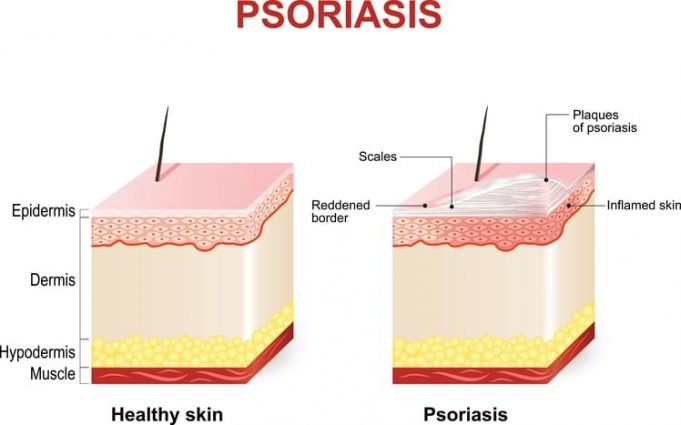 plaque psoriasis photos
